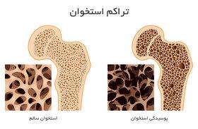 سالمترین گامها برای افزایش تراکم استخوان!