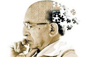 از دست دادن حافظه میتواند سوای آلزایمر، با بسیاری از دلایل در ارتباط باشد و در هر سنی رخ دهد.