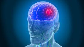 علتهای سکته مغزی که شاید از آنها بیخبرید!