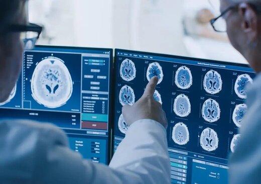 از عوارض کرونا بر سیستم عصبی چه میدانید؟