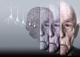 عمیق بخوابید تا آلزایمر نگیرید!