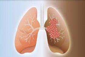 فیبروز ریه از علایم تا پیشگیری