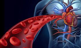 افزایش پلاکتهای خون به صورت طبیعی