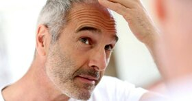 آیا کووید ۱۹ دلیل ریزش مو است؟